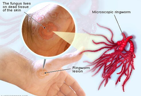 Ringworm Treatment Pictures Causes And Symptoms