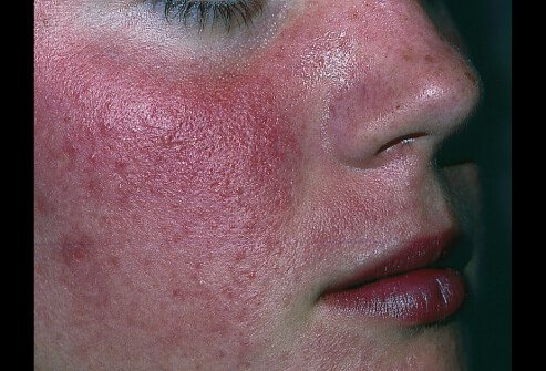 There is no cure for rosacea, but fortunately the condition is not dangerous.