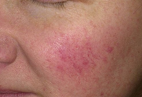 Rosacea causes deep red noses and cheeks, and may be set of by stress, sunlight, certain foods, and other causes.