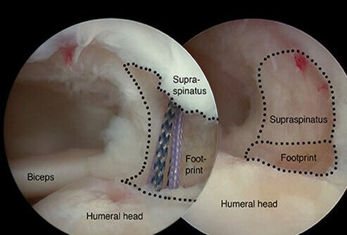 Rotator Cuff Tear Symptoms Causes And Surgery