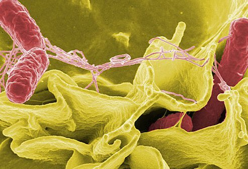 Knowing what kind of strain has caused a <i>Salmonella</i> outbreak helps scientists control the spread.