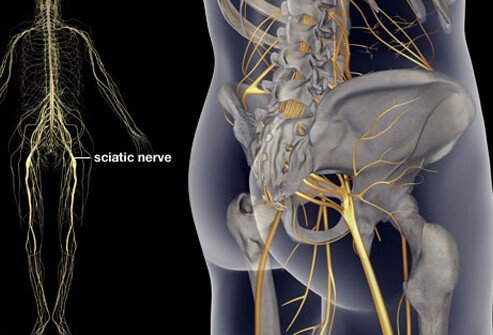 Sciatica is a pain that radiates from the low back down a lower extremity; it is caused by irritation of the sciatic nerve.