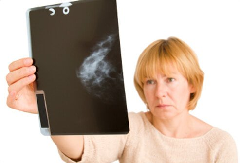 A doctor examines a mammogram X-ray image.