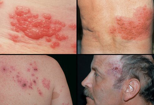 Here are examples of shingles blisters and rash.