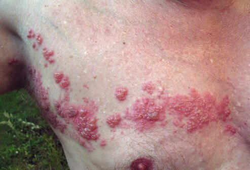 This man has a shingles rash (herpes zoster) of small blisters on his chest and torso.