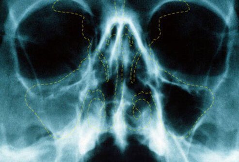 An X-ray of a patient with acute sinusitis.