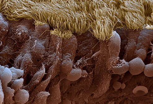 Cilia lining of the sinus cavity mucus membrane.