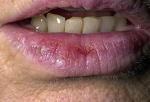 Close-up of actinic cheilitis on lower lip.
