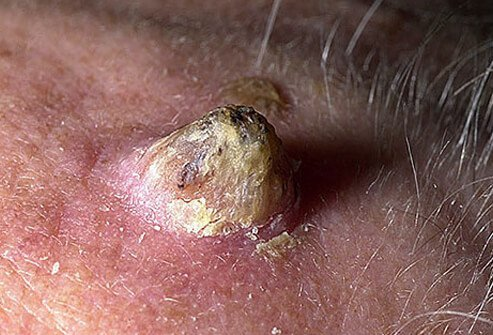 Close-up of cutaneous horn on scalp of elderly man