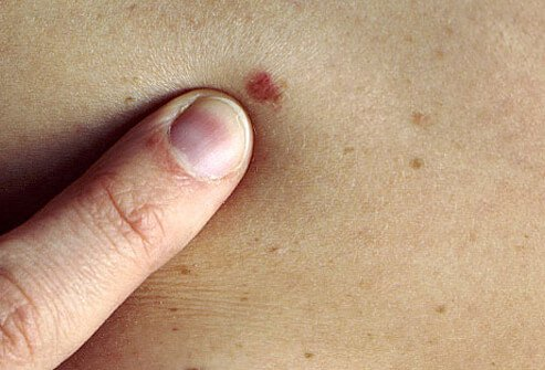 Nurse pointing out abnormal mole on woman's back.