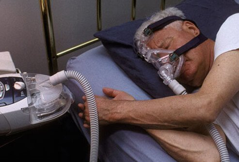 A man sleeping with a CPAP device, treating a sleep disorder.