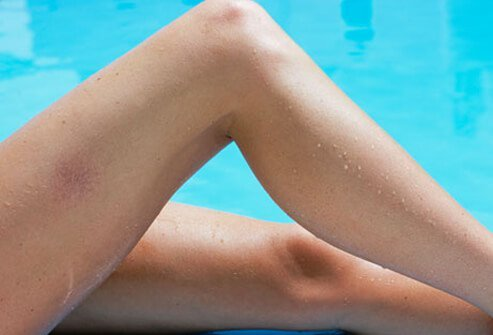 Spider veins and varicose veins are common conditions that affect many adults.