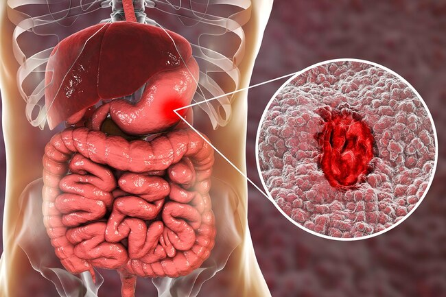 When your stomach's healthy, it's coated in a layer of sticky mucus.