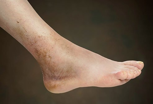 Foot Health: Causes of Swollen Feet and Ankles