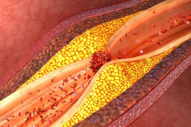 Cholesterol count comes from a blood test called a lipid profile.