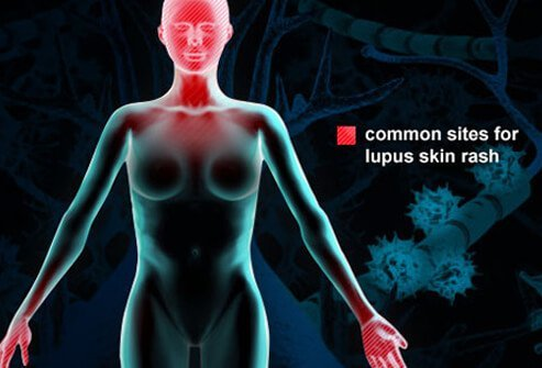 Lupus is an autoimmune disease whereby a misdirected immune system leads to inflammation and injury to one's own body tissues.