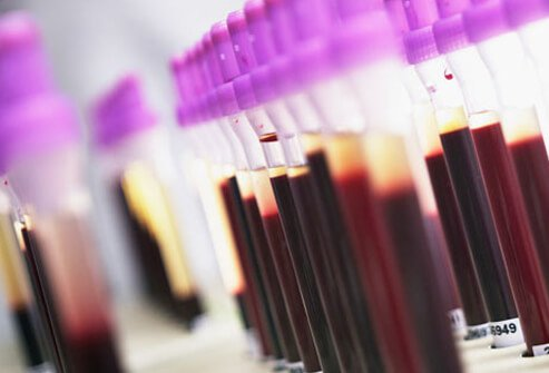 Photo of blood samples to test for lupus.