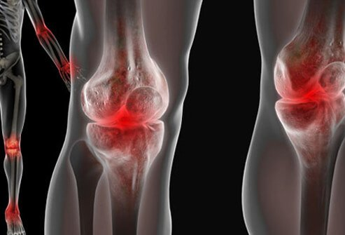 Illustration of joint pain caused by lupus.