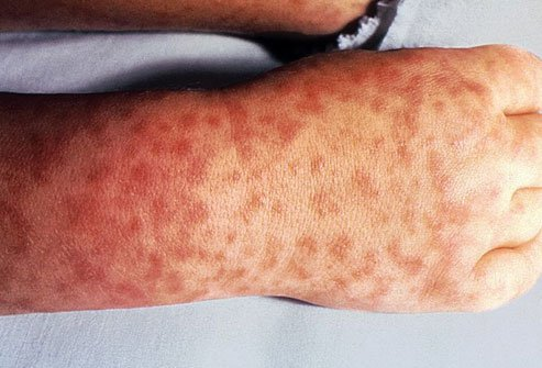Viral Skin Conditions: Pictures of Rashes, Blisters, and Sores in Adults  and Toddlers