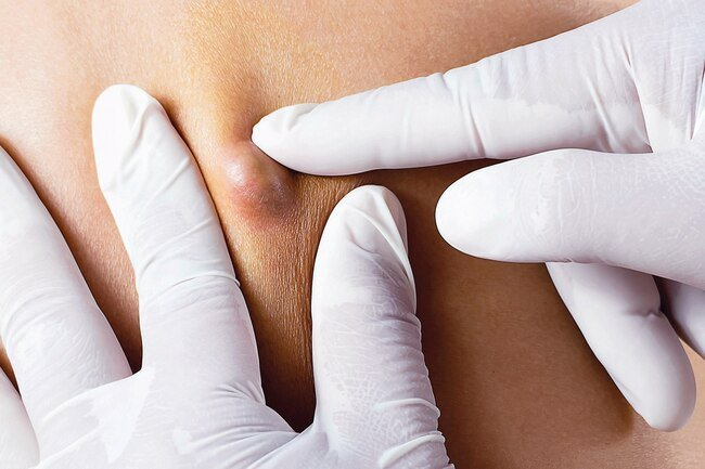A cyst is a lump that may need further evaluation to determine whether it is benign or something more serious.