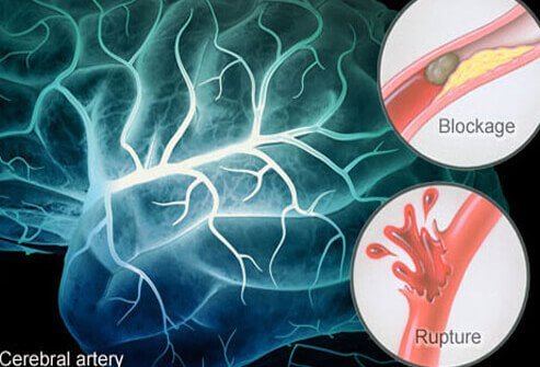 stroke causes symptoms diagnosis and treatment pdf  Stroke Causes, Symptoms, and Recovery