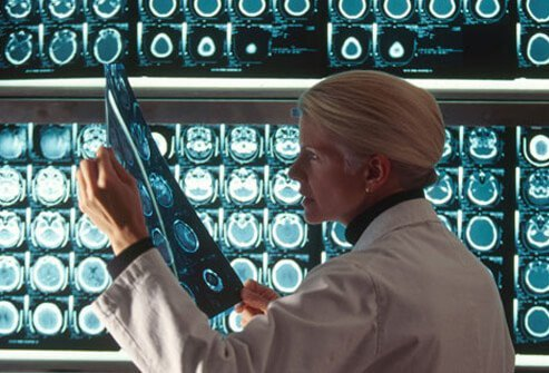 A doctor examining an MRI for stroke damage.