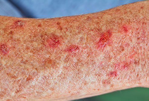 Actinic keratosis from sun exposure is a common manifestation of skin aging.