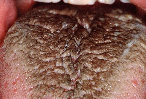 Photo of a black hairy tongue.
