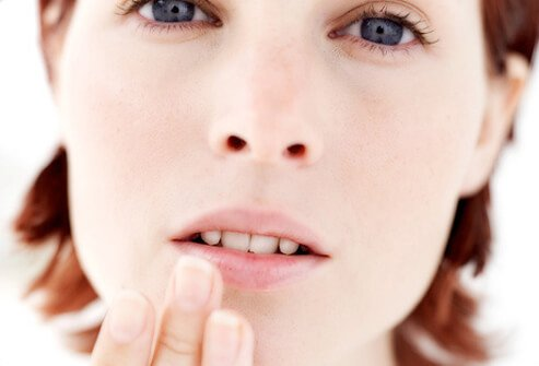 Photo of a woman touching her canker sore.