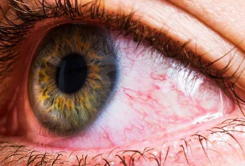 Tiny blood vessels in your eye may expand or burst when they get irritated or infected.
