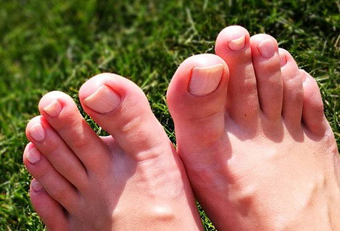 Whether you're washing your hands or admiring a manicure, you spend a lot more time looking at your fingernails than your toenails.