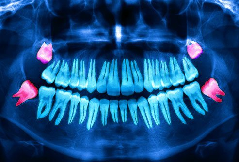 Why We Have Wisdom Teeth: Surgery, Pain, and Treatment
