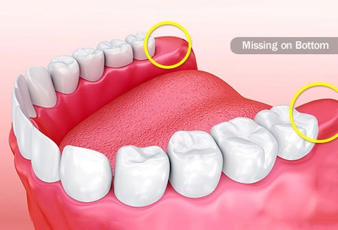 Why We Have Wisdom Teeth Surgery Pain And Treatment