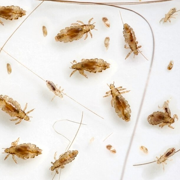 Lice & Nits: How to Get Rid of Head Lice Head Lice