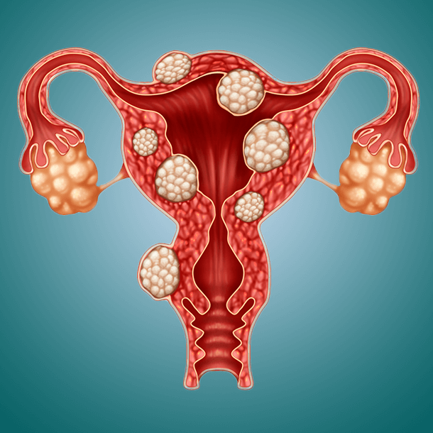 Noticing a Stomach Bulge? You May Have Fibroids |Uterine Fibroids