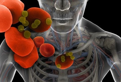 Can bacteria in your mouth contribute to heart disease and stroke?